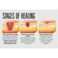 Wound Healing with Astaxanthin